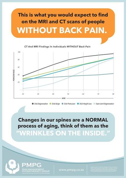 """""""Wrinkles on the Inside"""" is available in A2 and A3 size laminated posters.  Created by the Pain Management Physiotherapy Group."""